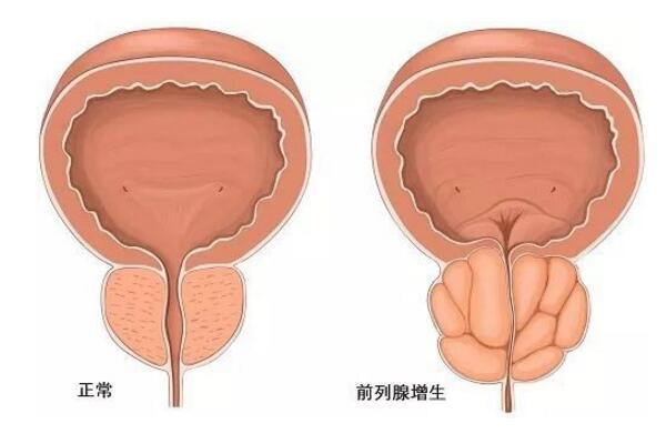 前列腺增生的注意事项