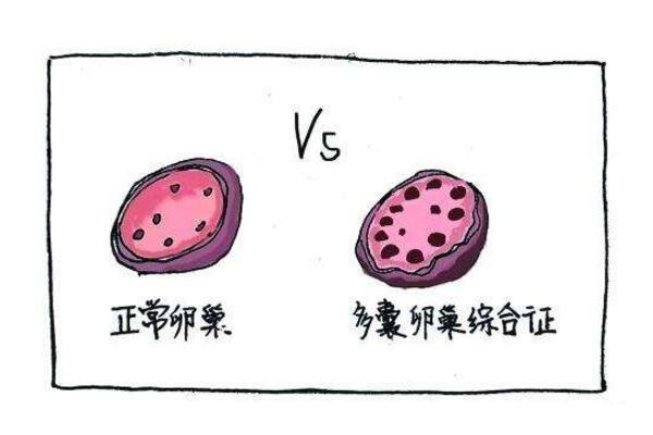 卵巢多囊的症状表现